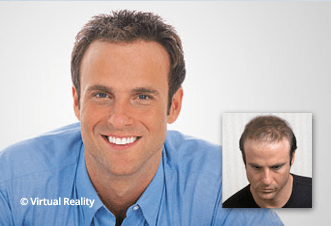 virtual reality mens hair replacement