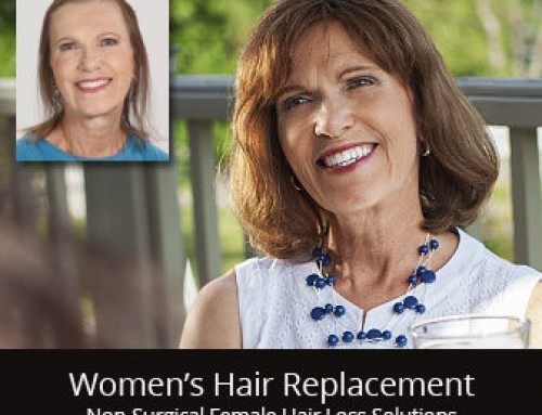 Hair Replacement Solution for Stress Related Hair Loss