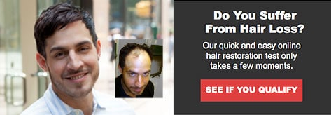 Men's Hair Restoration Test